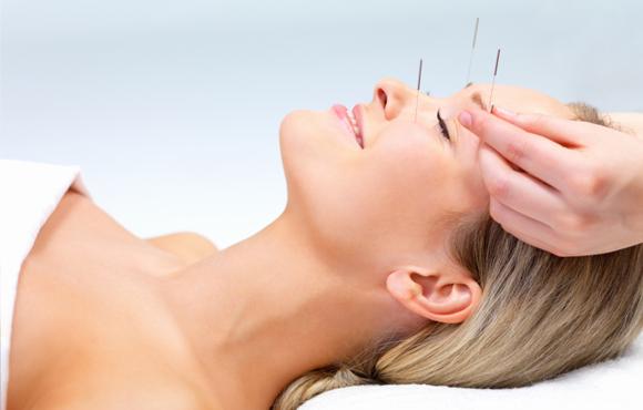 akupunkture